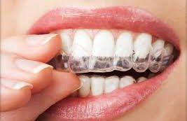 Бруксизм. Причины скрипа зубов