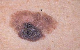 Связь между посещением солярия и риском черного кожного рака установить не удалось