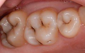 В чем причина заболеваний зубов
