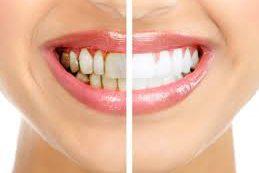 16 привычек, которые вредят вашим зубам