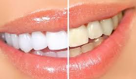 Секреты обворожительной улыбки: отбеливание зубов натуральными средствами