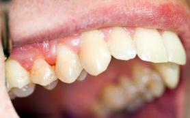 Воспаление десен: причины и симптомы