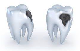 Эти ошибки гарантируют вам проблемы с зубами