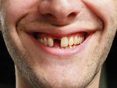 Скрытые заболевания полости рта, приводящие к потере зубов