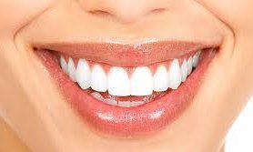 Зубные процедуры, которые помогут скрыть возраст