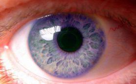 Иммунотерапия в онкологии способна негативно влиять на зрение