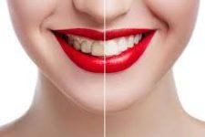 Почему зубы у женщин портятся гораздо быстрее, чем у мужчин