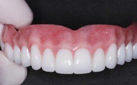 Отсутствие зубов связали со слабостью мышц