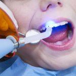 Революция в стоматологии - пломбы, которые противостоят микробным атакам