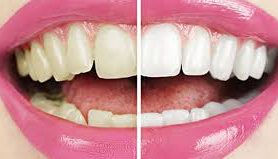 Врачи назвали простой, но эффективный способ отбеливания зубов дома