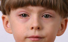 Конъюнктивит глаз у детей симптомы и лечение