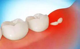 Стоматологи опровергли популярные мифы о зубах мудрости