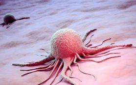 Почему злокачественные опухоли называют раком