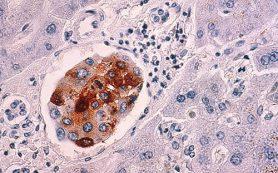 Ученые предлагают не называть некоторые злокачественные опухоли раком