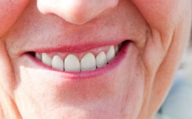 Как избежать ранней потери зубов