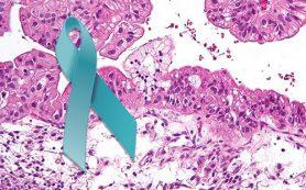 Это нужно знать, чтобы не пропустить рак яичника