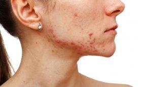 Причины и лечение угревой сыпи