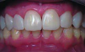Новые возможности метода прямой реставрации зубов с позиций биомеметики