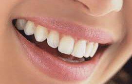 Стоматологи назвали продукты, «убивающие» белизну зубов