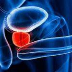 Основные симптомы бактериального простатита