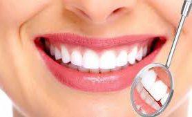 Вечные зубы