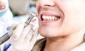 Как проводится профессиональная чистка зубов?