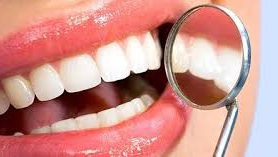 Ровные зубы — еще не повод для счастья