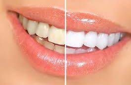 Названы главные причины пожелтения зубов