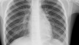 Современные особенности внебольничной пневмонии, вызванной Clamydophyla pneumoniae