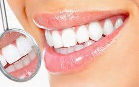 Чего не должно быть в продуктах для отбеливания зубов