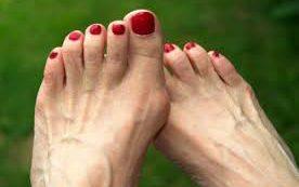 «Косточки» на ступнях: как избавиться и можно ли не допустить