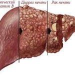 Современные аспекты хронического гепатита В