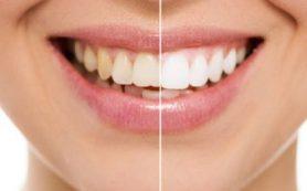 Стоматологи объяснили, как отбелить зубы в домашних условиях