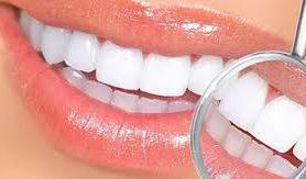 Врачи подсказали, как сохранить здоровье зубов