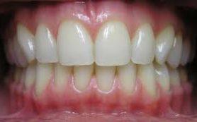 Залог здоровья зубов – здоровые десны