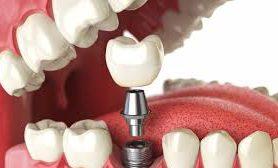 Имплантация зубов: как сэкономить, не рискуя здоровьем