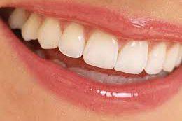 Продукты, разрушающие зубную эмаль