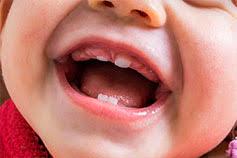 Береги смолоду: правила сохранения здоровых зубов