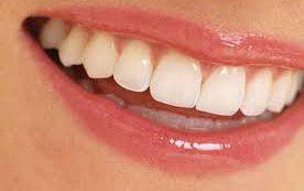 Напитки, которые негативно влияют на зубы