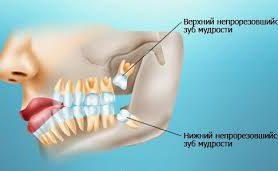 Стоматологи рассказали, зачем нужны зубы мудрости