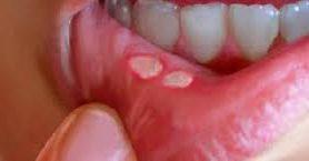 Стоматит, или что происходит у Вас во рту