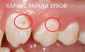 Продукты сильнее всего разрушают зубную эмаль