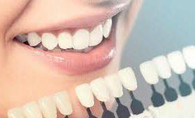 Стоматолог рассказала, что влияет на цвет зубов