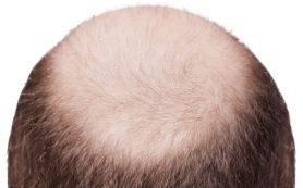 Найден метод для уменьшения выпадения волос при химиотерапии рака