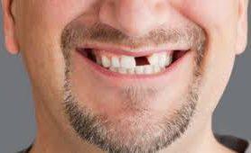 Заболевания, которые могут спровоцировать потерю зубов