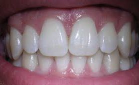 Открыт ген, определяющий образование зубной эмали