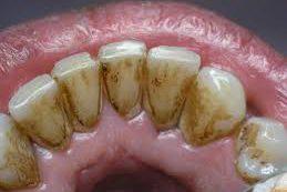 Стоматологи подсказали, как избавиться от зубного камня