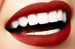 Простые способы сделать свою улыбку белоснежной