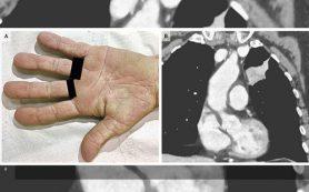 «Бархатистые» ладони помогли поставить диагноз рака легкого