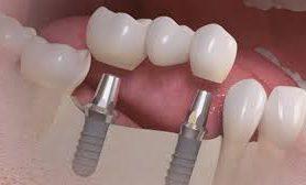 Зубы тоже трансплантат